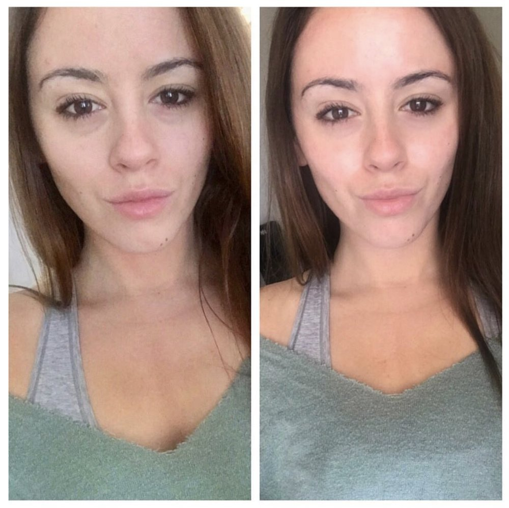 the_spa_westashley_hydracial_before_after_2