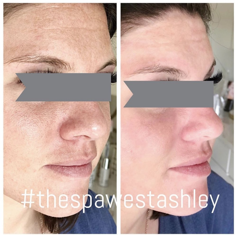 HydraFacial Treatment - Before & After Pictures