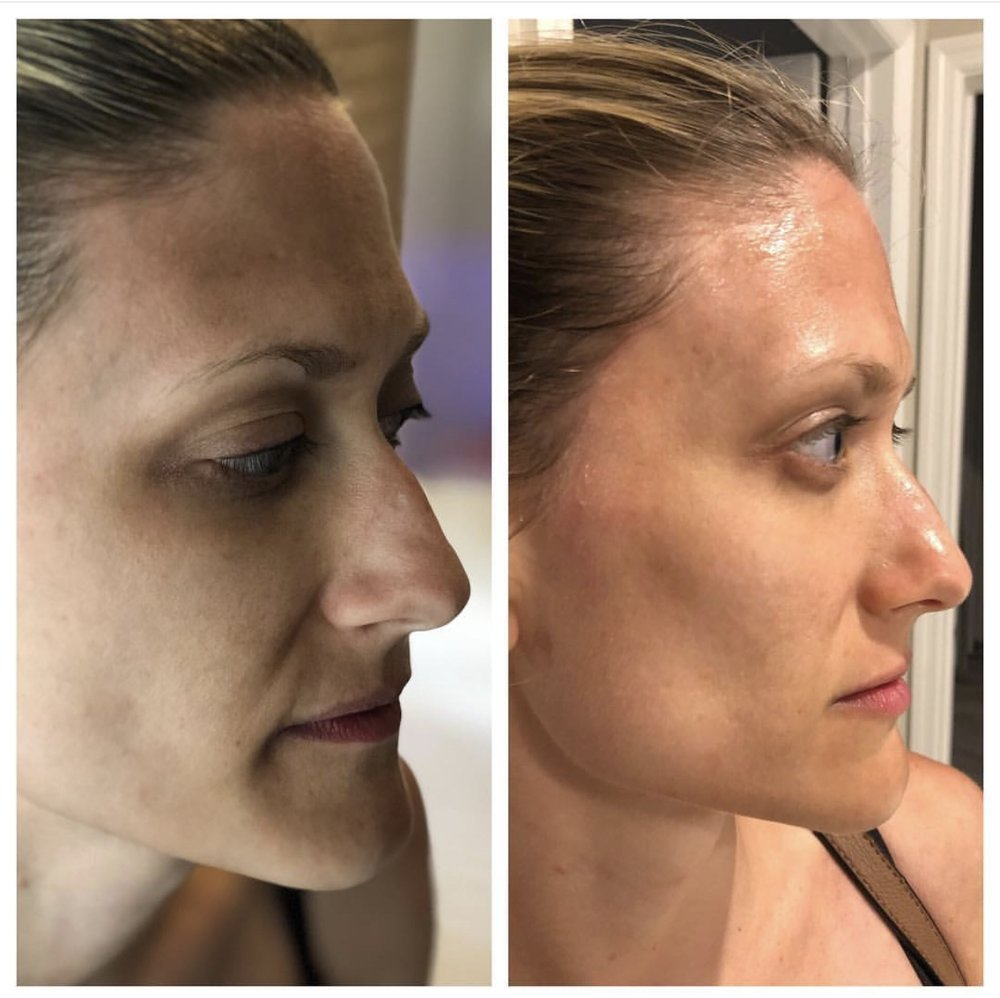 the_spa_westashley_hydracial_before_after_6