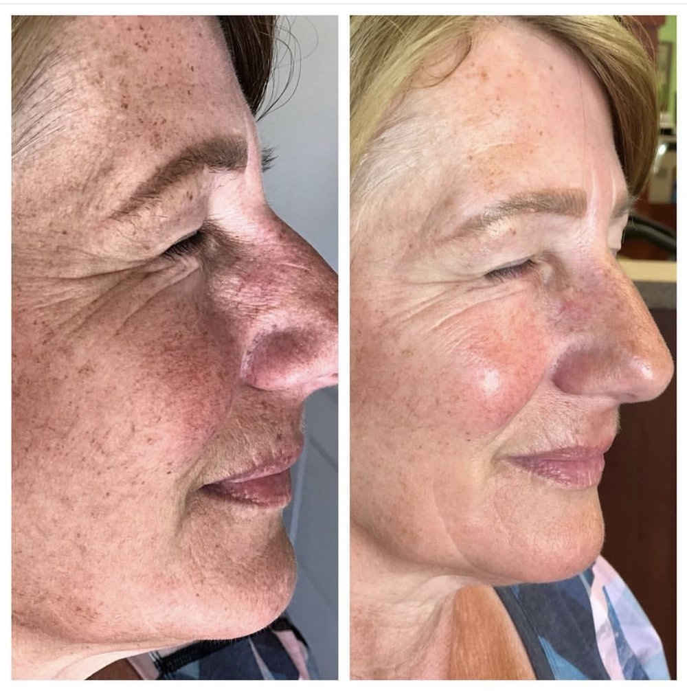 the_spa_westashley_hydracial_before_after_7