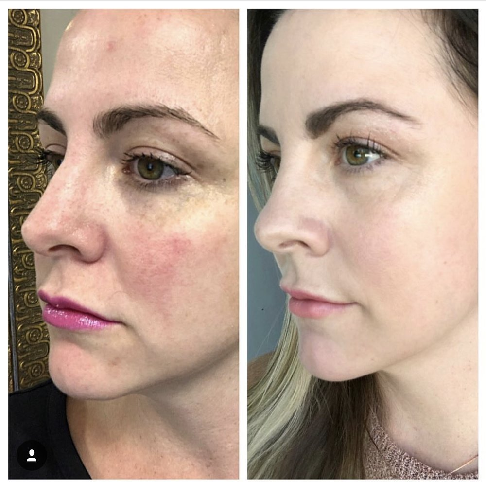 the_spa_westashley_hydracial_before_after_8