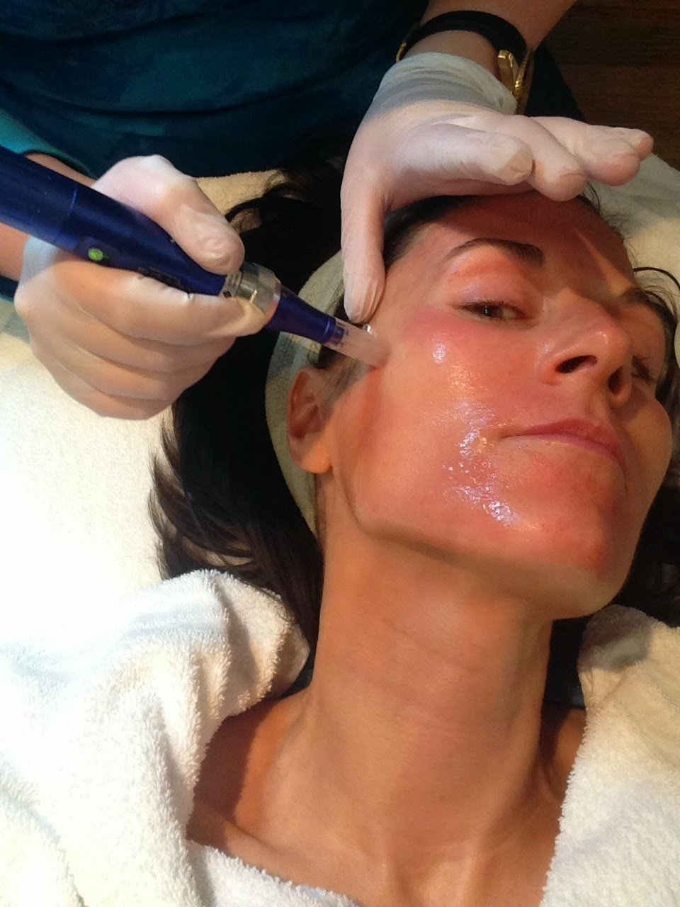 SkinPen Microneedling For Removing Acne Scars