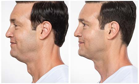 Kybella Treatment For Removing Double Chin - Before & After Difference