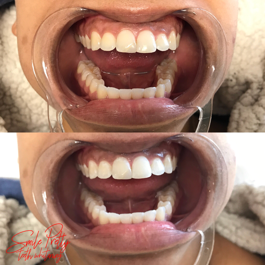 Professional Teeth Whitening Treatment