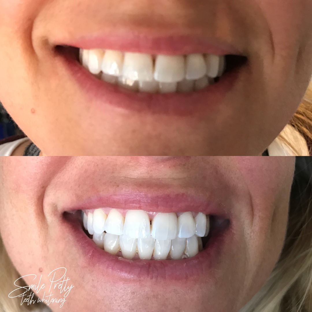 Teeth Whitening Treatment - Before & After Result
