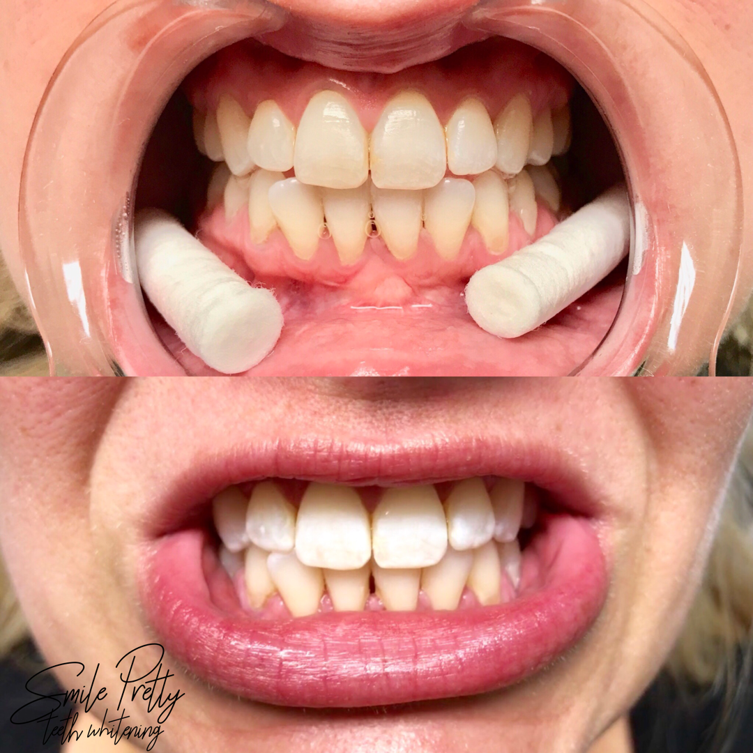 Professional Teeth Whitening Treatment For Your Smile