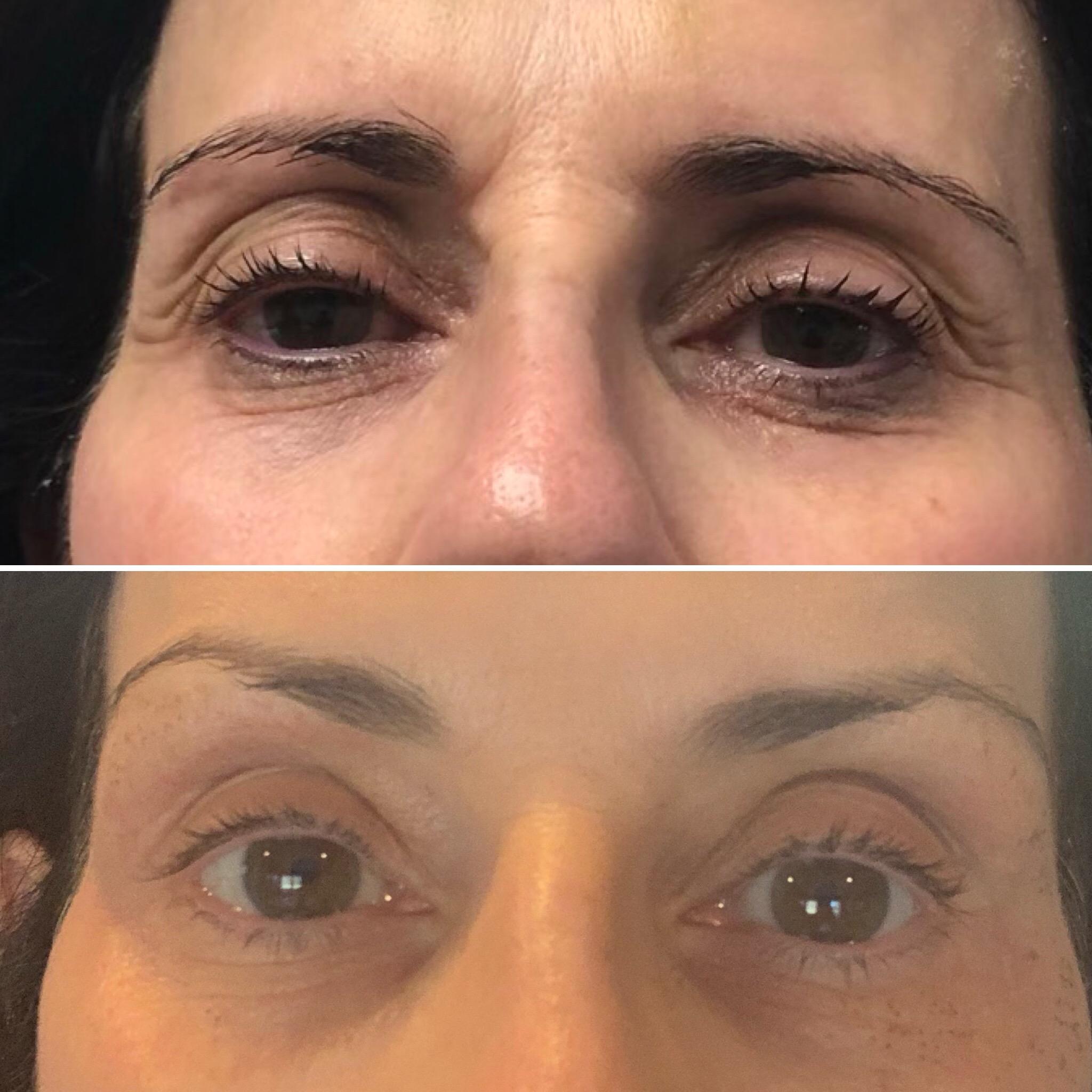 Plasma Pen - Advanced Skin Lifting, Tightening & Rejuvenating Device