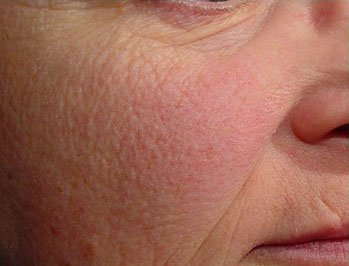 Rejuvenated Your Skin with Best Laser Treatment