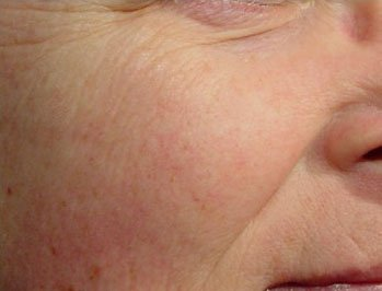 Laser Genesis - Non-Invasive Skin Treatment