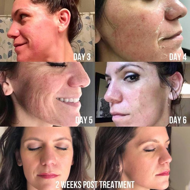 Chemical Peel Treatment - Before & After Results